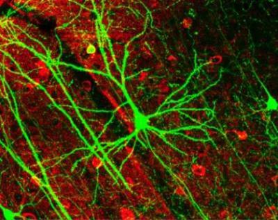 La sinàpsis neuronal